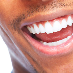 A photo of a smile with healthy gums